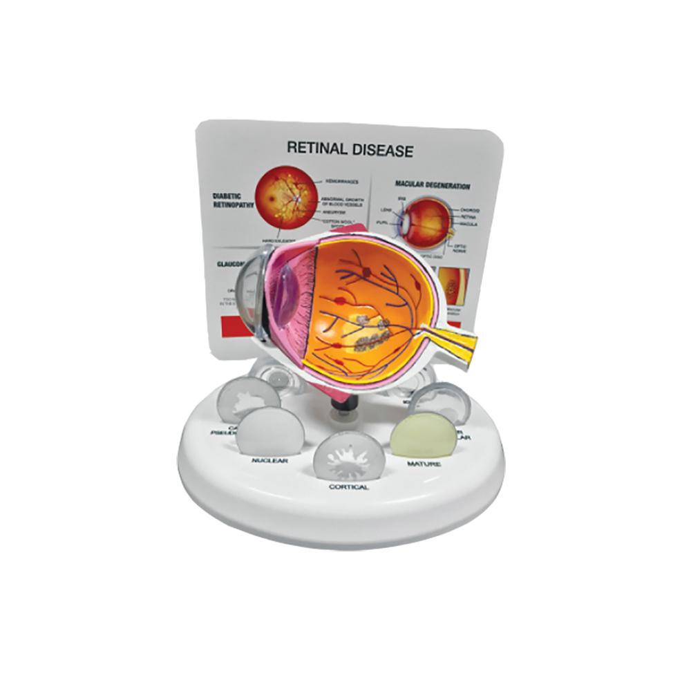 Eye Model - Retinal Disease