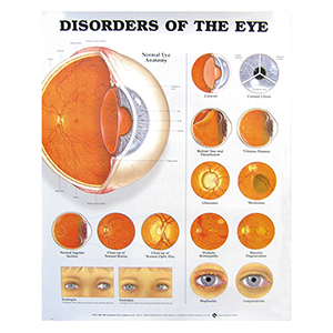 Related Product: Poster: Disorders of the Eye